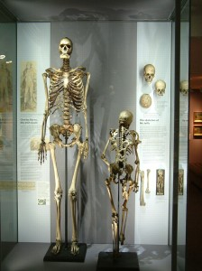 Skeleton-Charles-Byrne-display